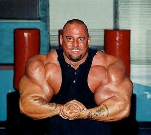 Gregg Valentino, brazos deformes