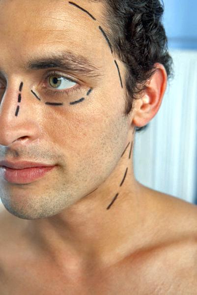 Cirugía estética para hombres