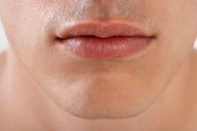 Tratamiento de los labios cuarteados 1