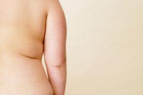 Sobrepeso y deporte