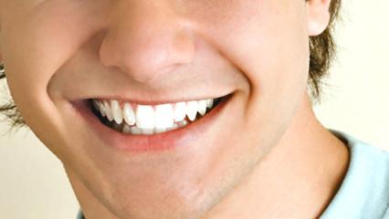 Blanquear los dientes para una sonrisa de película