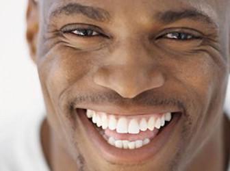 Dientes blancos con Renov'Smile 1
