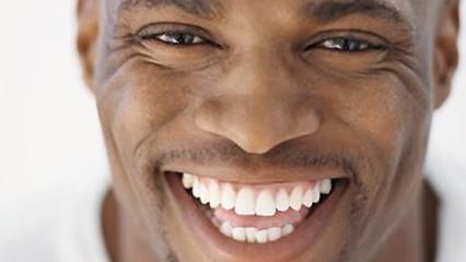 Dientes blancos con Renov'Smile