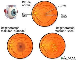 La degeneración macular 2