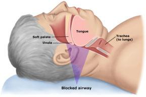 Apnea obstructiva del sueño, riesgo para obesos