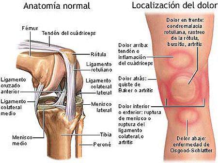 ¿Dolor en la rodilla? Puedes estar sufriendo de condromalacia