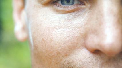 Consejos para limitar la dilatación de los poros