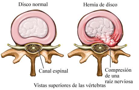 Hernia de disco 2