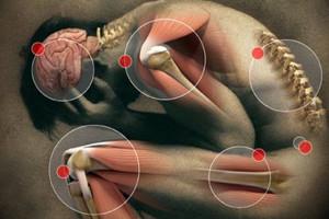 Síndrome de Dolor Miofascial  1