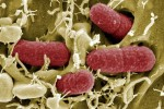 La escherichia coli, formas de prevenirla
