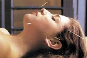 La acupuntura, restablece la salud 1