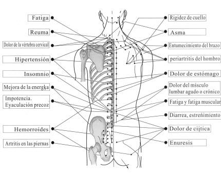 La acupuntura, restablece la salud