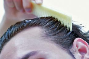 La caída del cabello afecta la moral de los hombres