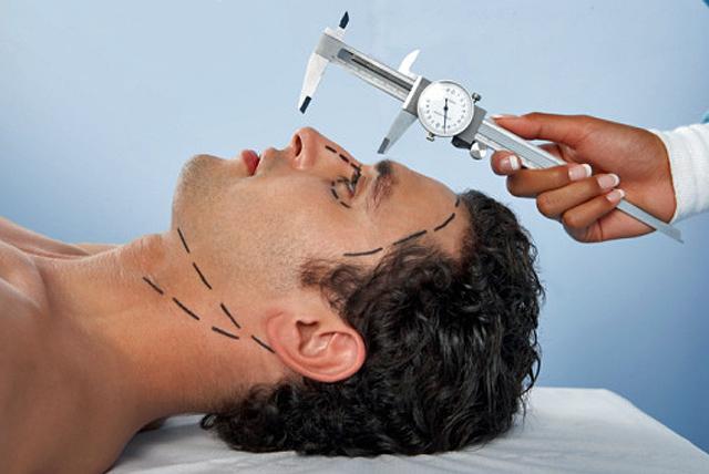 operación de cara