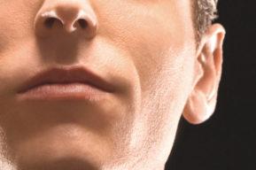 Rejuvenecer el labio superior de la boca