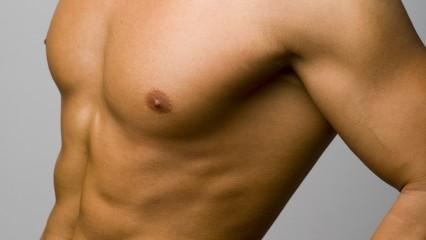 La ginecomastia, un problema que tiene solución