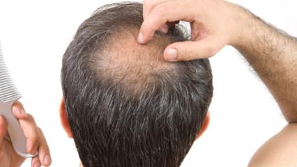 Pérdida del cabello