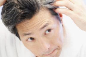 La calvicie y sus posibles causas y tratamiento