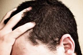 Tratamiento eficaz contra la caspa capilar