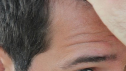 Cirugía estética capilar