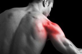 Dolores musculares, tipos, causas y tratamientos