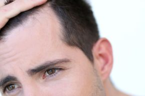 Alopecia y microinjerto capilar