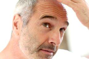 Soluciones para la calvicie, cirugía estética