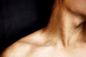 Eliminar el doble mentón, los métodos de la medicina estética