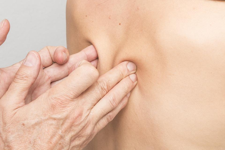 Cómo aliviar el dolor lumbar: ¿Fisioterapia o remedio casero? 2