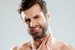 Cómo eliminar la caspa en la barba