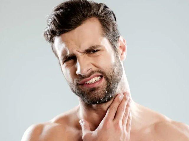 Cómo eliminar la caspa en la barba 1